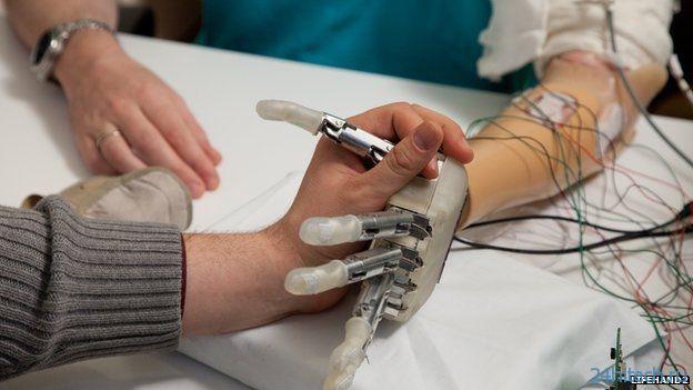 Человек смог почувствовать касания с помощью бионической руки