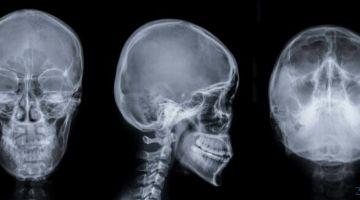 видео | Этот робот проникает в мозг человека и лечит инсульт