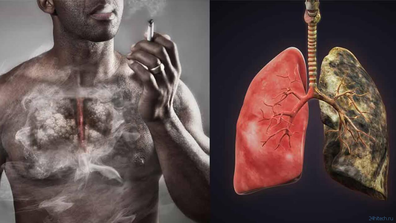 Клетки курильщика картинки